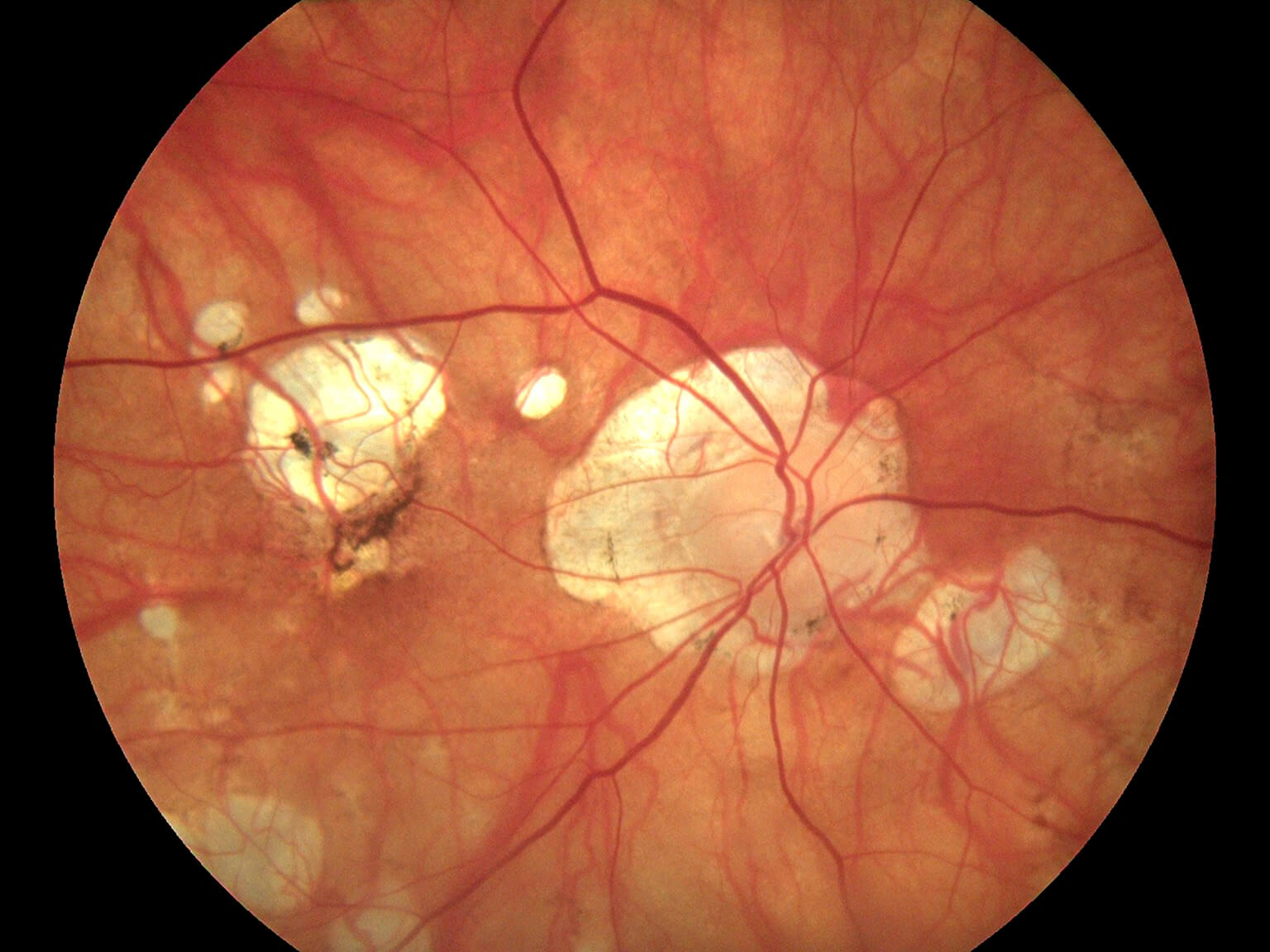 https://www.lameris-group.nl/wp-content/uploads/2020/03/Haag-Streit-Fundus-Module-300-5.jpg